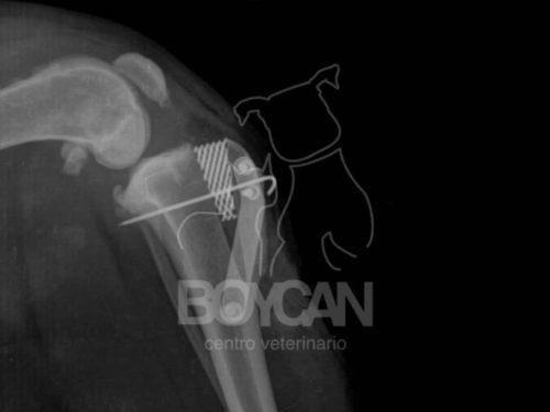 faldon-radiografia03